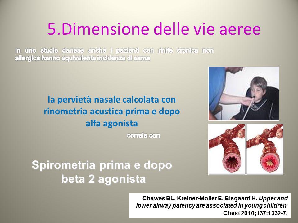 5.Dimensione delle vie aeree la pervietà nasale calcolata con rinometria acustica prima e dopo alfa agonista Spirometria prima e dopo beta 2 agonista