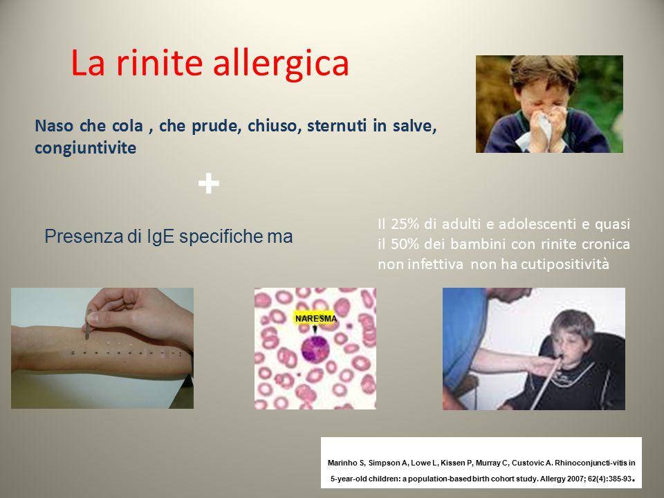 La rinite allergica Naso che cola, che prude, chiuso, sternuti in salve, congiuntivite Presenza di IgE specifiche ma + Il 25% di adulti e adolescenti
