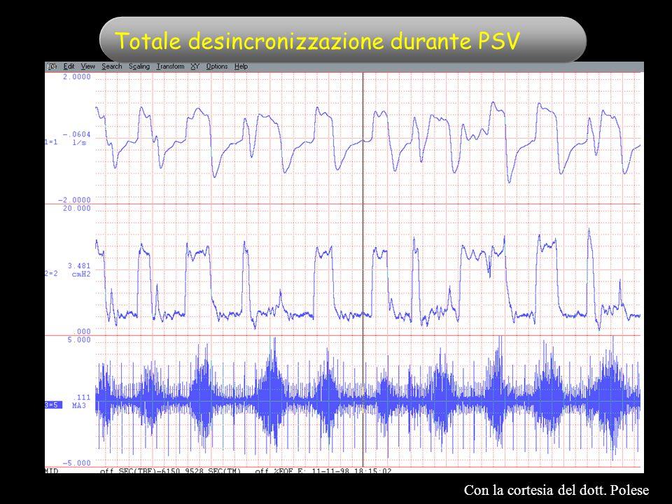 Totale desincronizzazione durante PSV Con la cortesia del dott. Polese