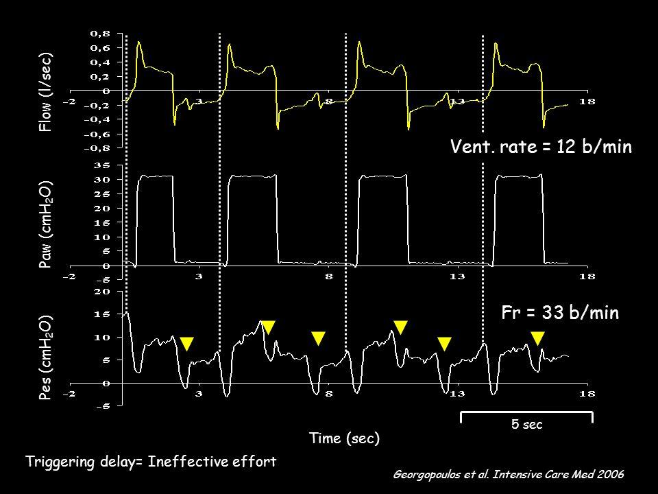 Time (sec) Flow (l/sec) Paw (cmH 2 O) Pes (cmH 2 O) 5 sec Fr = 33 b/min Georgopoulos et al.