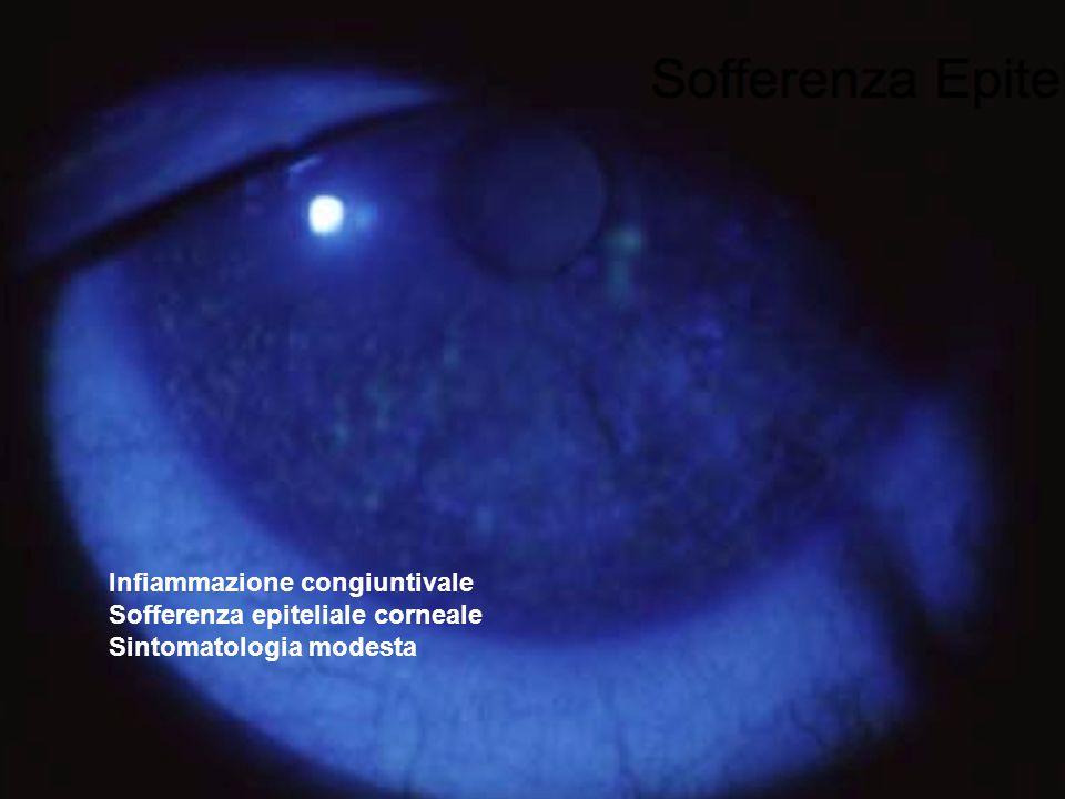 Infiammazione congiuntivale Sofferenza epiteliale corneale Sintomatologia modesta