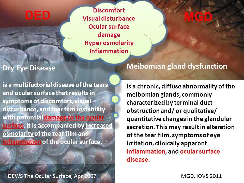 Meccanismi principali della malattia dell occhio secco Adattato da Baudouin et al.