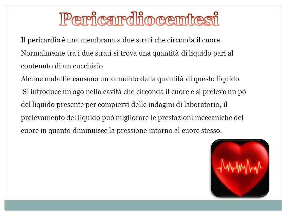 Il pericardio è una membrana a due strati che circonda il cuore. Normalmente tra i due strati si trova una quantità di liquido pari al contenuto di un