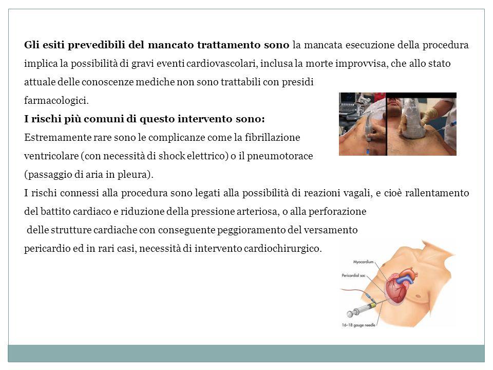 Gli esiti prevedibili del mancato trattamento sono la mancata esecuzione della procedura implica la possibilità di gravi eventi cardiovascolari, inclu