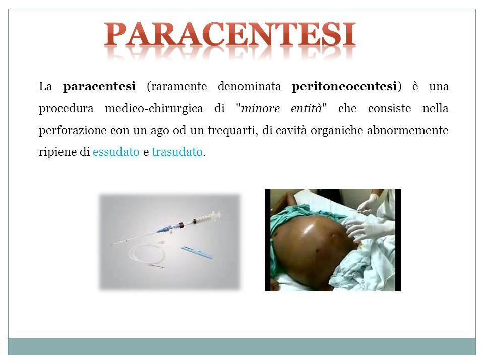 La paracentesi (raramente denominata peritoneocentesi) è una procedura medico-chirurgica di