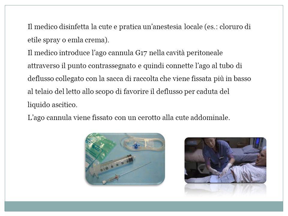 Il medico disinfetta la cute e pratica un'anestesia locale (es.: cloruro di etile spray o emla crema). Il medico introduce l'ago cannula G17 nella cav
