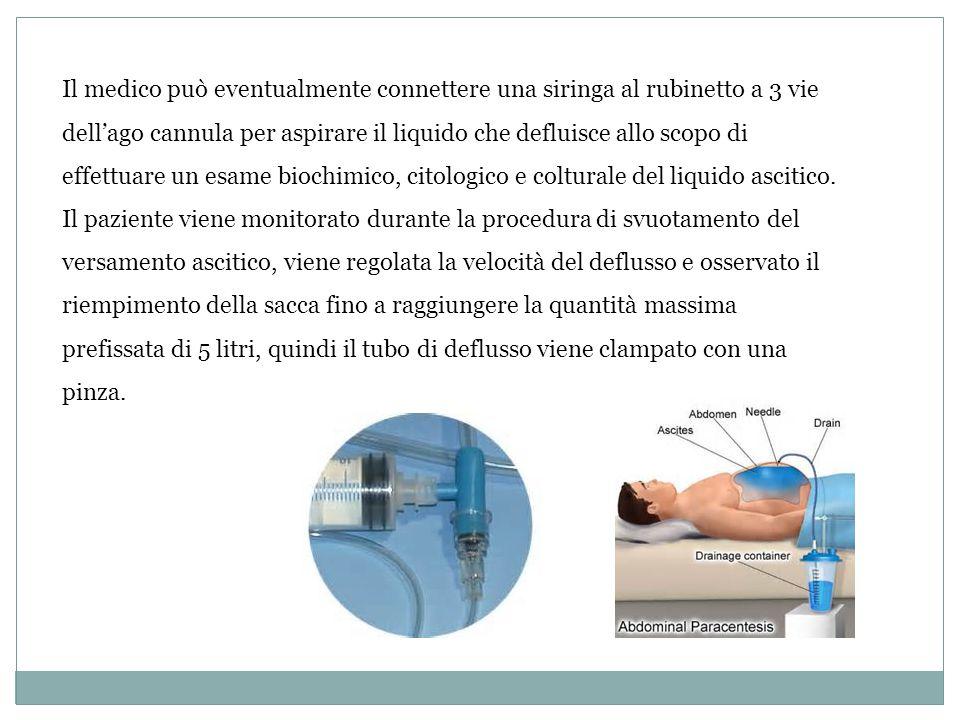 Il medico può eventualmente connettere una siringa al rubinetto a 3 vie dell'ago cannula per aspirare il liquido che defluisce allo scopo di effettuar