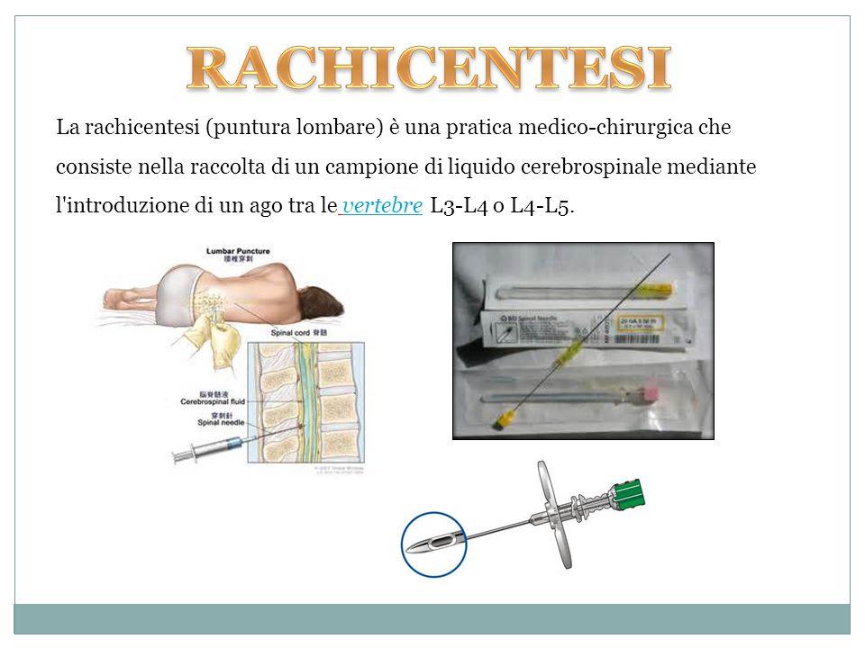 La rachicentesi (puntura lombare) è una pratica medico-chirurgica che consiste nella raccolta di un campione di liquido cerebrospinale mediante l'intr