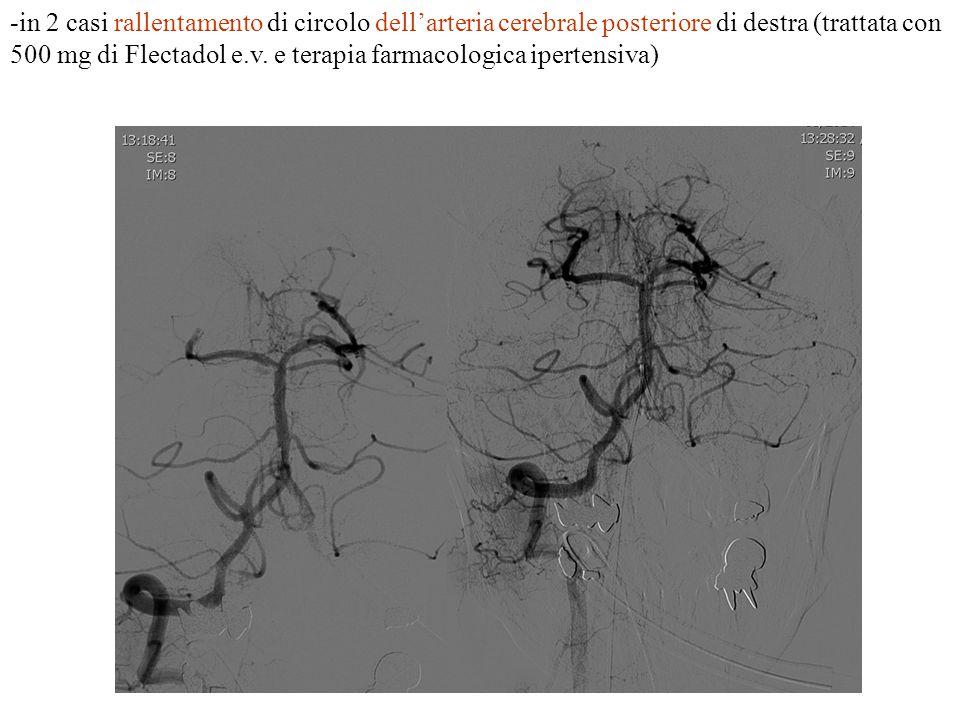 -in 2 casi rallentamento di circolo dell'arteria cerebrale posteriore di destra (trattata con 500 mg di Flectadol e.v. e terapia farmacologica iperten