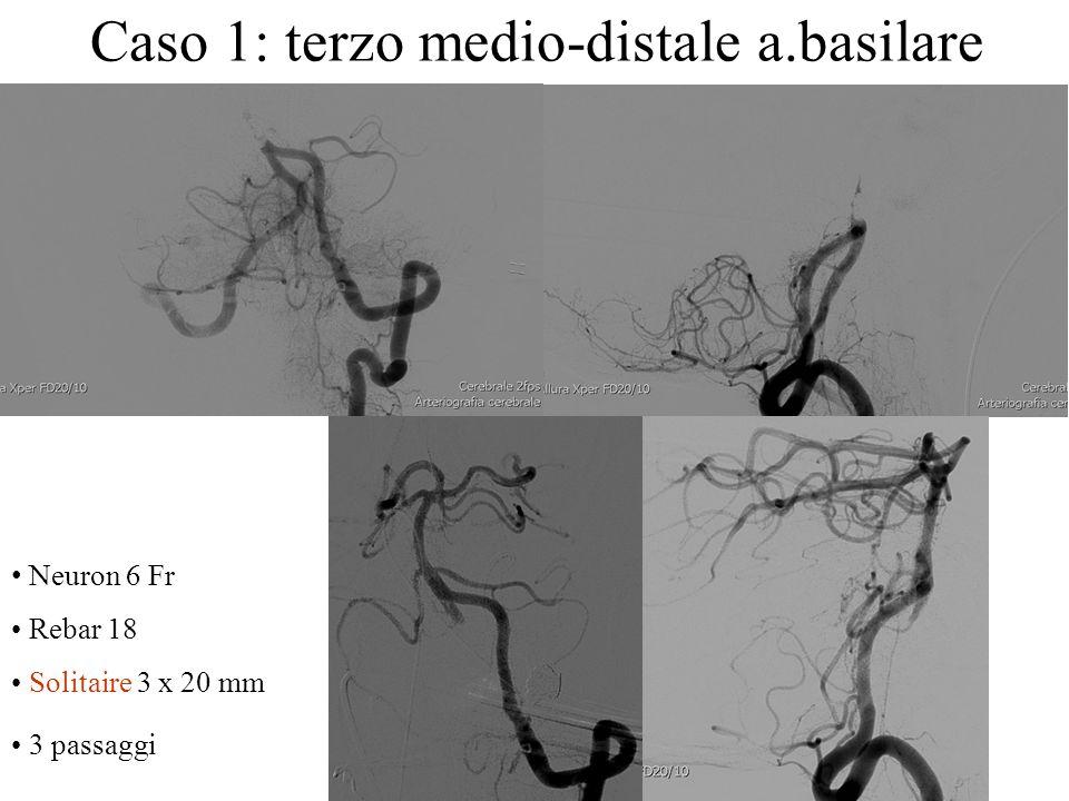 Neuron 6 Fr Rebar 18 Solitaire 3 x 20 mm 3 passaggi Caso 1: terzo medio-distale a.basilare