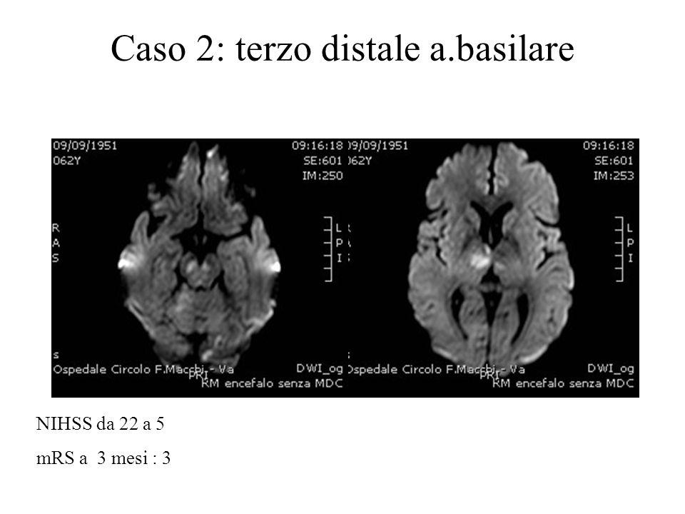 Caso 2: terzo distale a.basilare NIHSS da 22 a 5 mRS a 3 mesi : 3