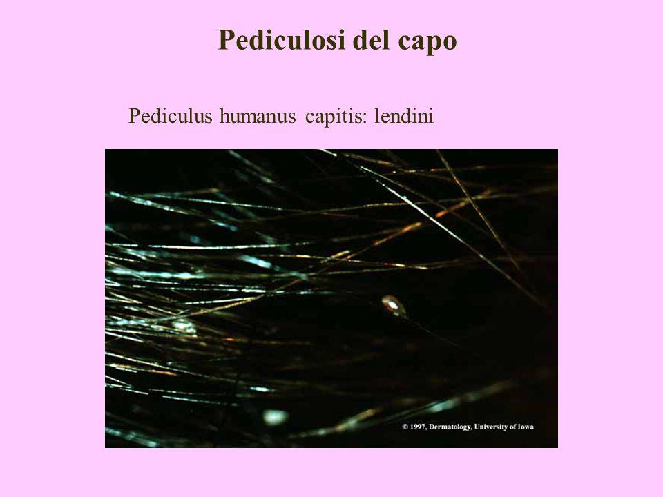 Pediculosi del capo Lendini: sono ovoidali, opercolate, di dimensioni 0,8x0,3 mm; aderiscono al pelo.
