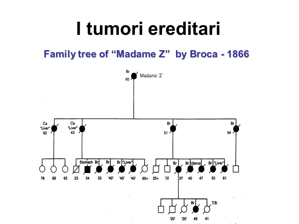"Family tree of ""Madame Z"" by Broca - 1866 I tumori ereditari"