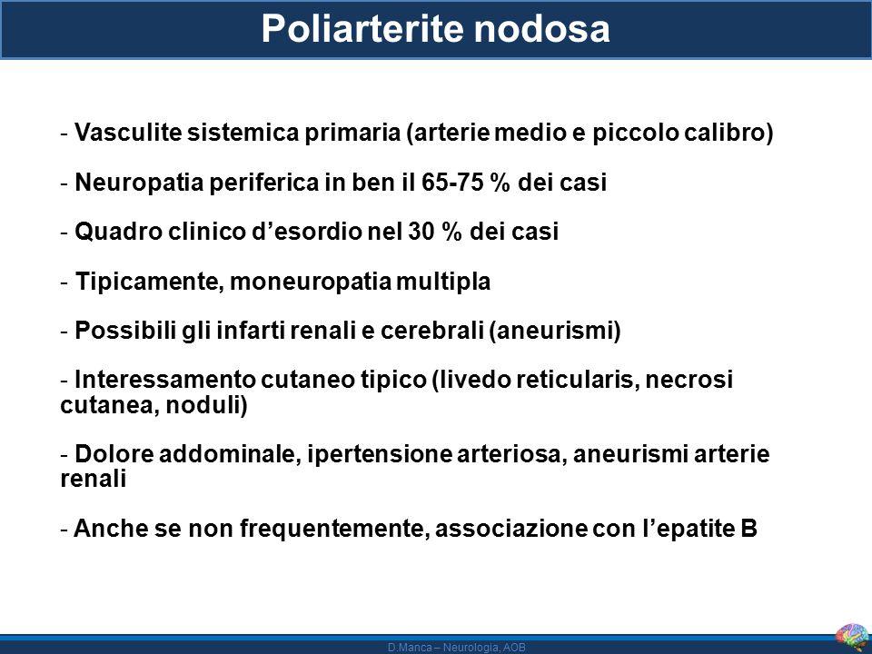 D.Manca – Neurologia, AOB Poliarterite nodosa - Vasculite sistemica primaria (arterie medio e piccolo calibro) - Neuropatia periferica in ben il 65-75 % dei casi - Quadro clinico d'esordio nel 30 % dei casi - Tipicamente, moneuropatia multipla - Possibili gli infarti renali e cerebrali (aneurismi) - Interessamento cutaneo tipico (livedo reticularis, necrosi cutanea, noduli) - Dolore addominale, ipertensione arteriosa, aneurismi arterie renali - Anche se non frequentemente, associazione con l'epatite B