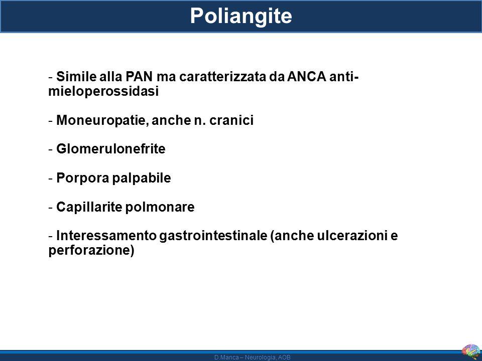 D.Manca – Neurologia, AOB Poliangite - Simile alla PAN ma caratterizzata da ANCA anti- mieloperossidasi - Moneuropatie, anche n.