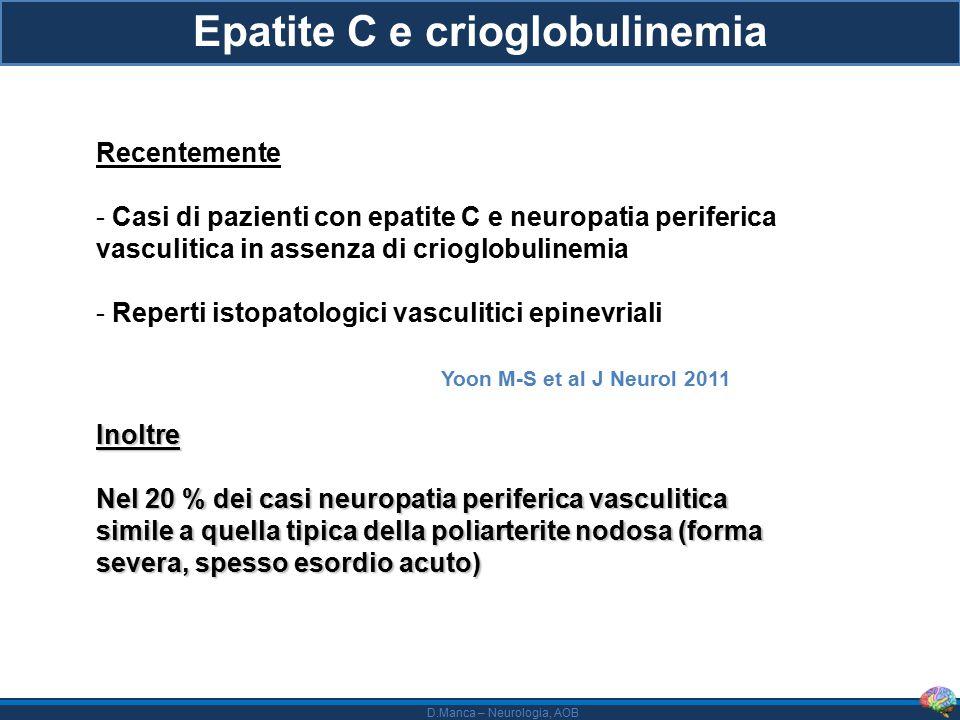 D.Manca – Neurologia, AOB Epatite C e crioglobulinemia Recentemente - Casi di pazienti con epatite C e neuropatia periferica vasculitica in assenza di crioglobulinemia - Reperti istopatologici vasculitici epinevriali Yoon M-S et al J Neurol 2011Inoltre Nel 20 % dei casi neuropatia periferica vasculitica simile a quella tipica della poliarterite nodosa (forma severa, spesso esordio acuto)