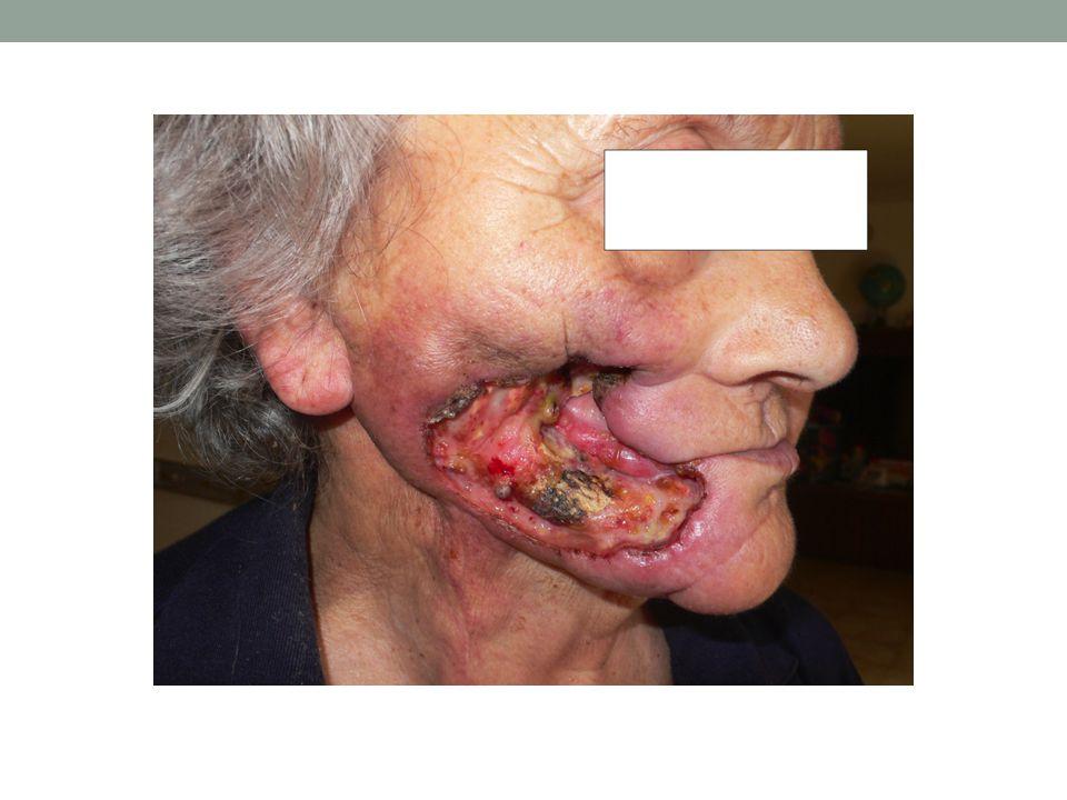SINO Prosecuzione Terapia Anticoagulante CoumadinEBPM Prosecuzione con Caso Clinico 2