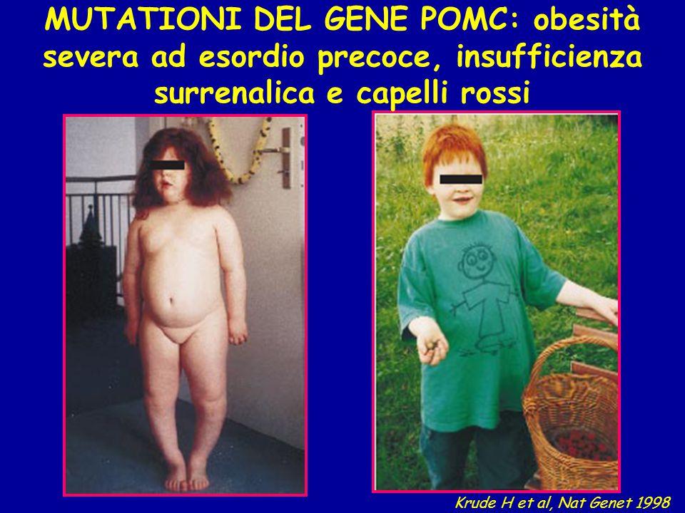 MUTATIONI DEL GENE POMC: obesità severa ad esordio precoce, insufficienza surrenalica e capelli rossi Krude H et al, Nat Genet 1998