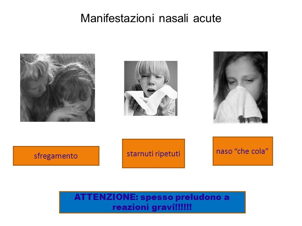 Manifestazioni oculari acute arrossamento lacrimazionesfregamento ATTENZIONE: spesso preludono a reazioni gravi!!!!