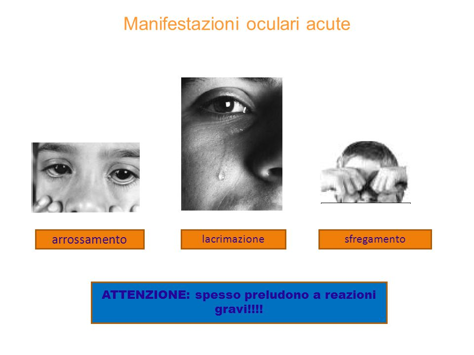 Reazioni anafilattiche pericolose per la vita EDEMA DELLA GLOTTIDE CRISI ASMATICA COLLASSO CARDIO_CIRCOLATORIO SHOCK SEGNI PREMONITORI di anafilassi sistemica senso di calore sulla cute (il bambino dice che ha caldo) formicolio e prurito al cuoio capelluto/prurito endoauricolare eritema/edema/prurito al palmo delle mani e pianta dei piedi sintomi nasali e oculari