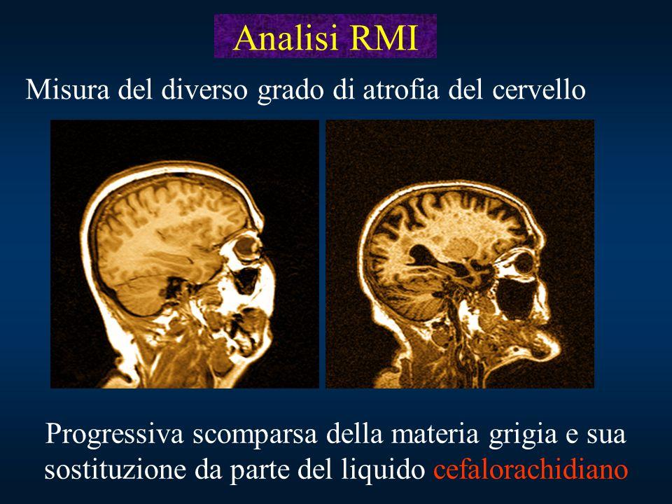 Progressiva scomparsa della materia grigia e sua sostituzione da parte del liquido cefalorachidiano Analisi RMI Misura del diverso grado di atrofia de