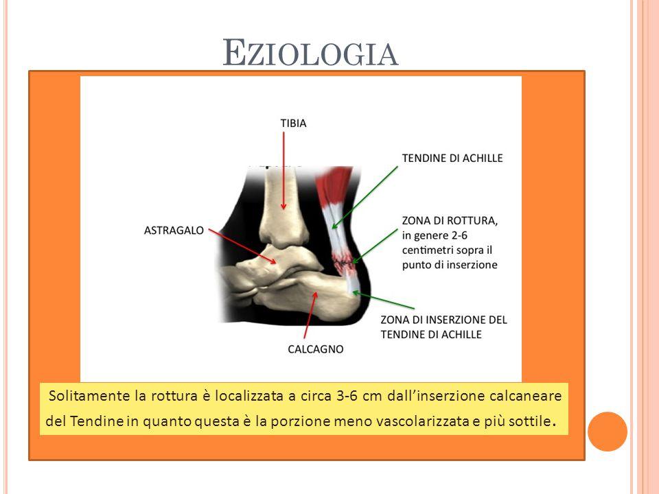E ZIOLOGIA Solitamente la rottura è localizzata a circa 3-6 cm dall'inserzione calcaneare del Tendine in quanto questa è la porzione meno vascolarizzata e più sottile.