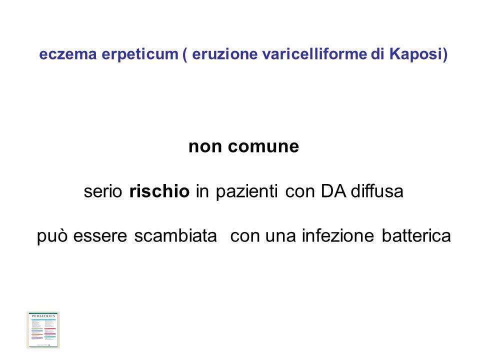 eczema erpeticum ( eruzione varicelliforme di Kaposi) non comune serio rischio in pazienti con DA diffusa può essere scambiata con una infezione batterica Andrew C.