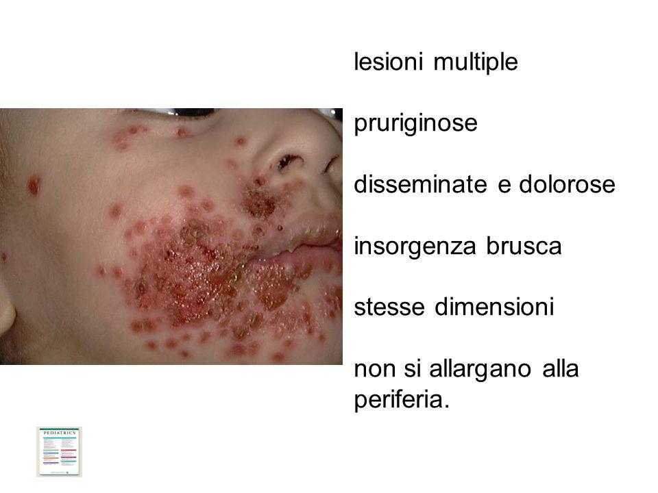 lesioni multiple pruriginose disseminate e dolorose insorgenza brusca stesse dimensioni non si allargano alla periferia.