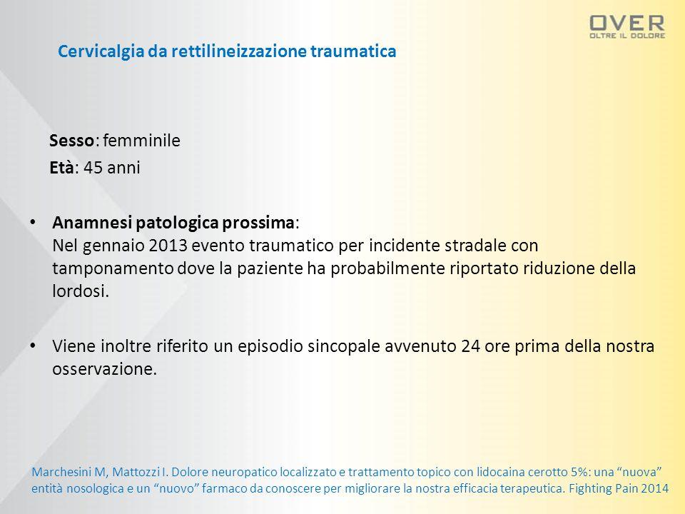 Sesso: femminile Età: 45 anni Anamnesi patologica prossima: Nel gennaio 2013 evento traumatico per incidente stradale con tamponamento dove la paziente ha probabilmente riportato riduzione della lordosi.