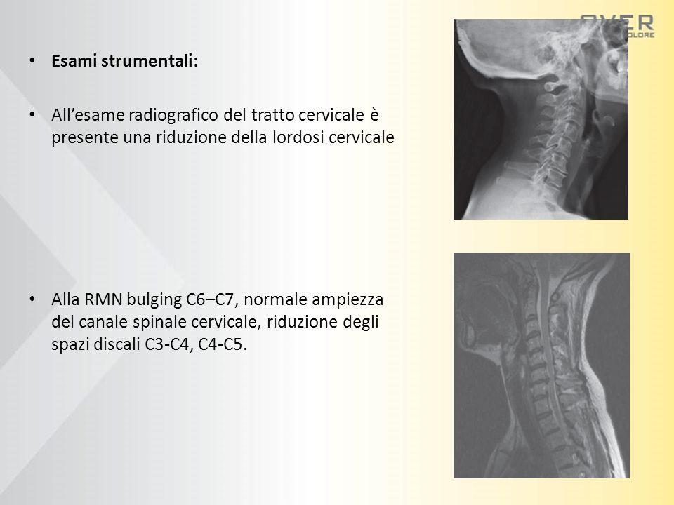 Esami strumentali: All'esame radiografico del tratto cervicale è presente una riduzione della lordosi cervicale Alla RMN bulging C6–C7, normale ampiezza del canale spinale cervicale, riduzione degli spazi discali C3-C4, C4-C5.