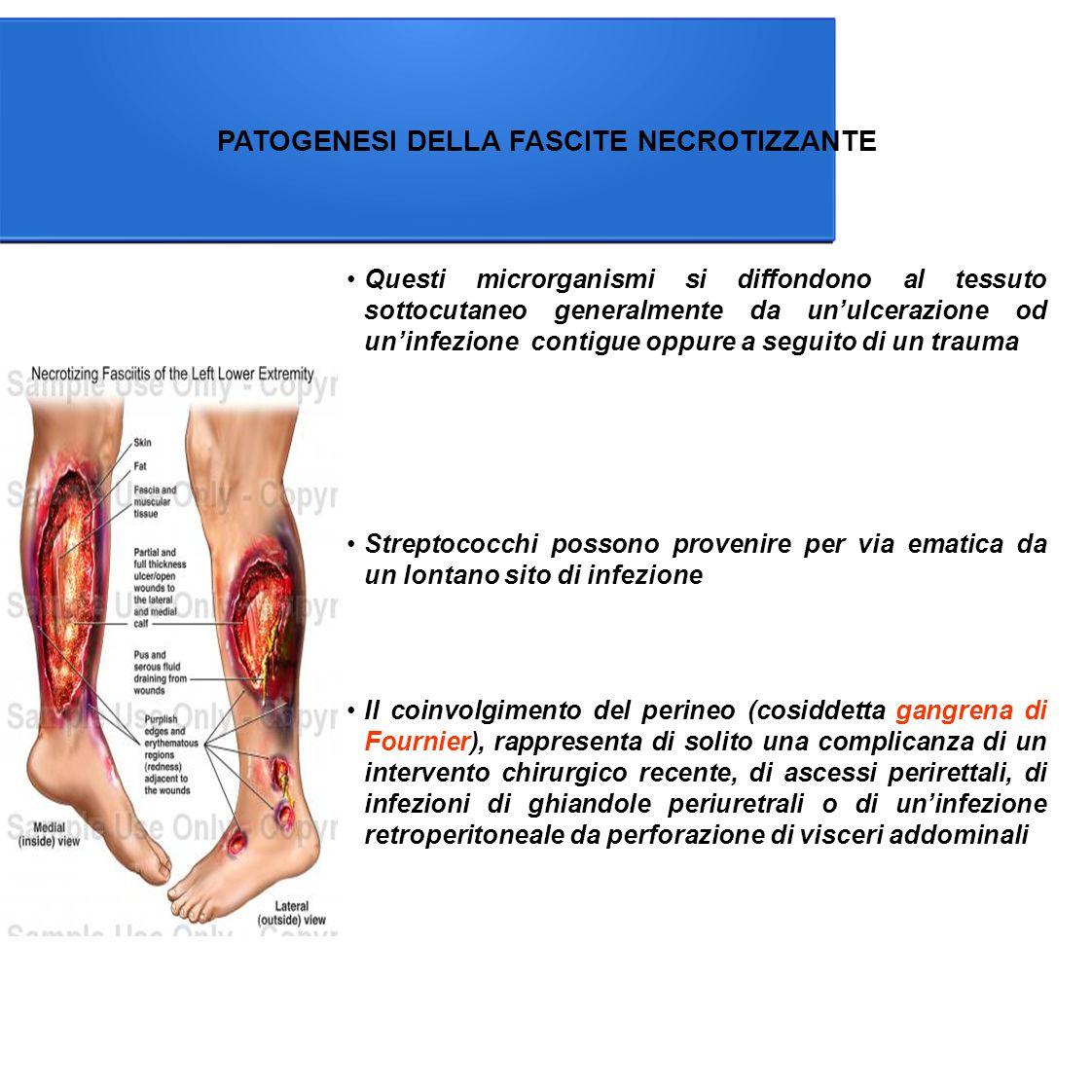 PATOGENESI DELLA FASCITE NECROTIZZANTE Questi microrganismi si diffondono al tessuto sottocutaneo generalmente da un'ulcerazione od un'infezione contigue oppure a seguito di un trauma Il coinvolgimento del perineo (cosiddetta gangrena di Fournier), rappresenta di solito una complicanza di un intervento chirurgico recente, di ascessi perirettali, di infezioni di ghiandole periuretrali o di un'infezione retroperitoneale da perforazione di visceri addominali Streptococchi possono provenire per via ematica da un lontano sito di infezione