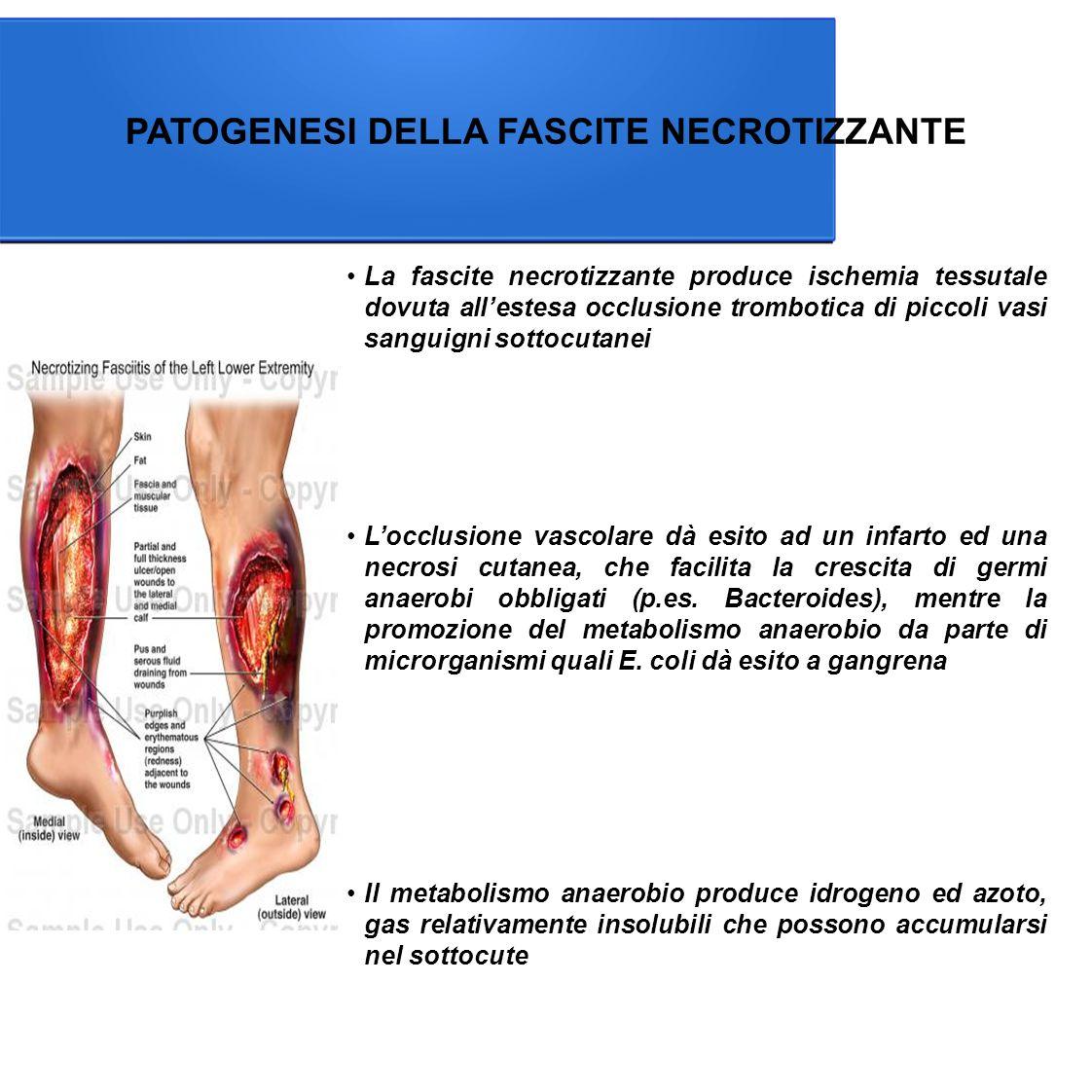 PATOGENESI DELLA FASCITE NECROTIZZANTE La fascite necrotizzante produce ischemia tessutale dovuta all'estesa occlusione trombotica di piccoli vasi sanguigni sottocutanei Il metabolismo anaerobio produce idrogeno ed azoto, gas relativamente insolubili che possono accumularsi nel sottocute L'occlusione vascolare dà esito ad un infarto ed una necrosi cutanea, che facilita la crescita di germi anaerobi obbligati (p.es.