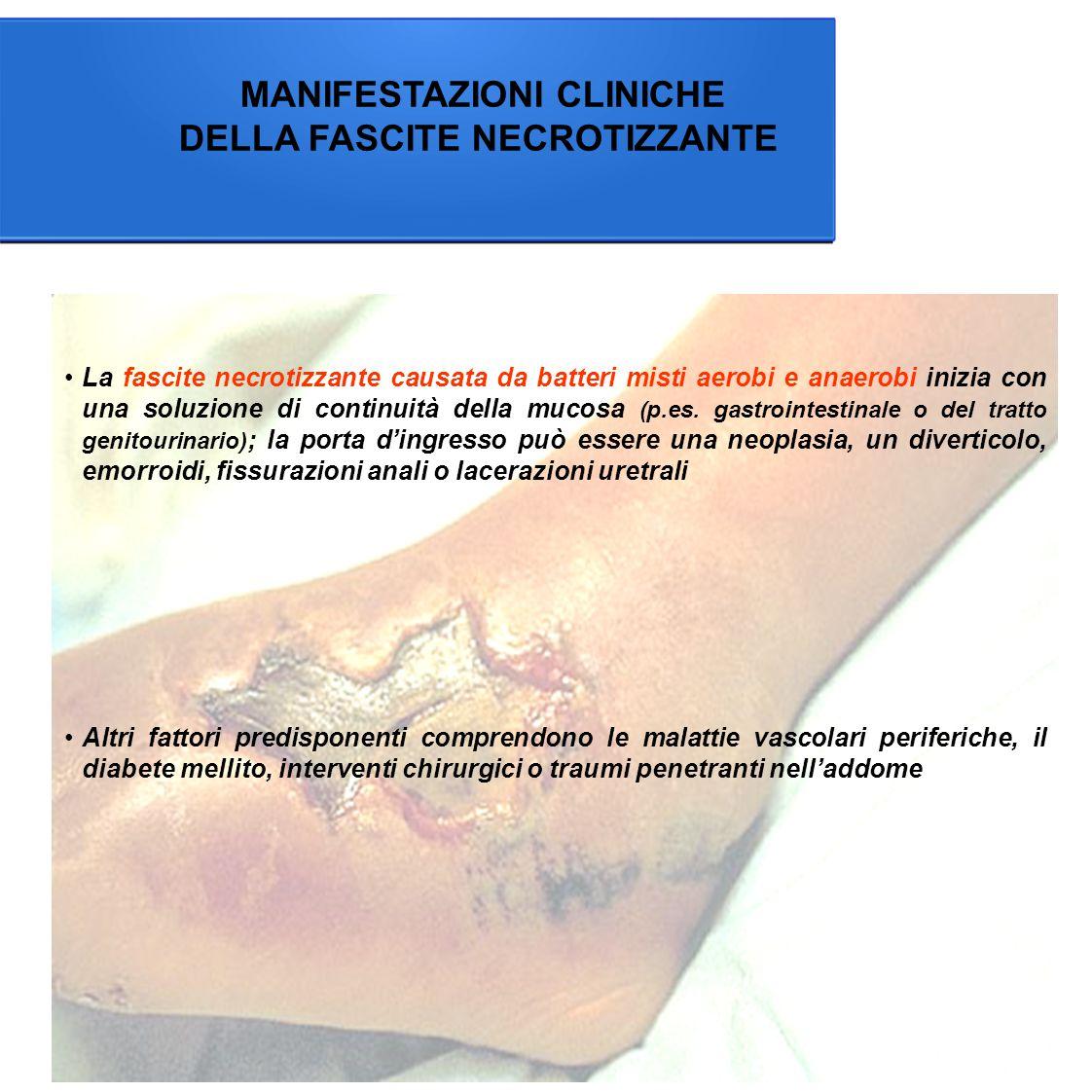 MANIFESTAZIONI CLINICHE DELLA FASCITE NECROTIZZANTE La fascite necrotizzante causata da batteri misti aerobi e anaerobi inizia con una soluzione di continuità della mucosa (p.es.