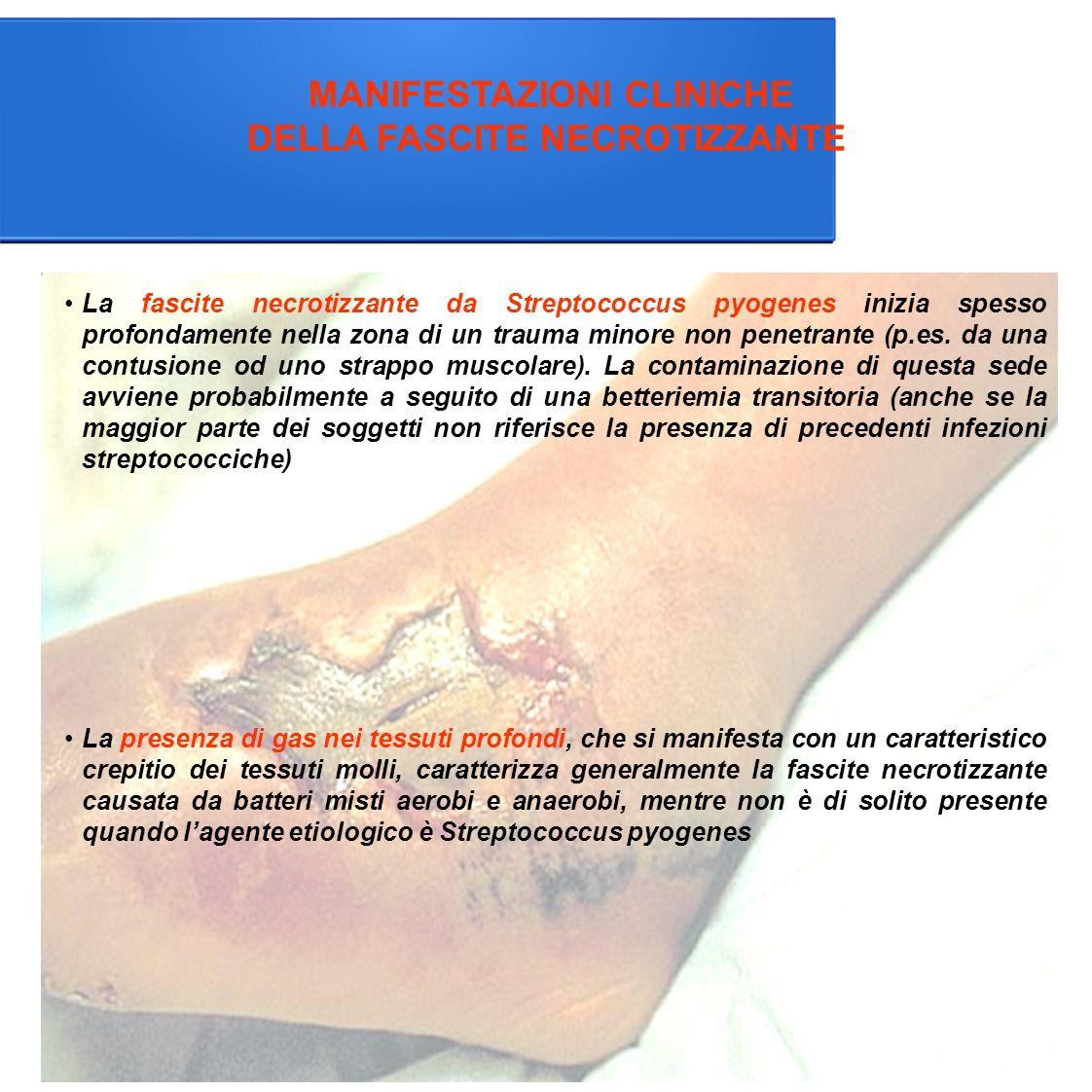 MANIFESTAZIONI CLINICHE DELLA FASCITE NECROTIZZANTE La presenza di gas nei tessuti profondi, che si manifesta con un caratteristico crepitio dei tessuti molli, caratterizza generalmente la fascite necrotizzante causata da batteri misti aerobi e anaerobi, mentre non è di solito presente quando l'agente etiologico è Streptococcus pyogenes La fascite necrotizzante da Streptococcus pyogenes inizia spesso profondamente nella zona di un trauma minore non penetrante (p.es.