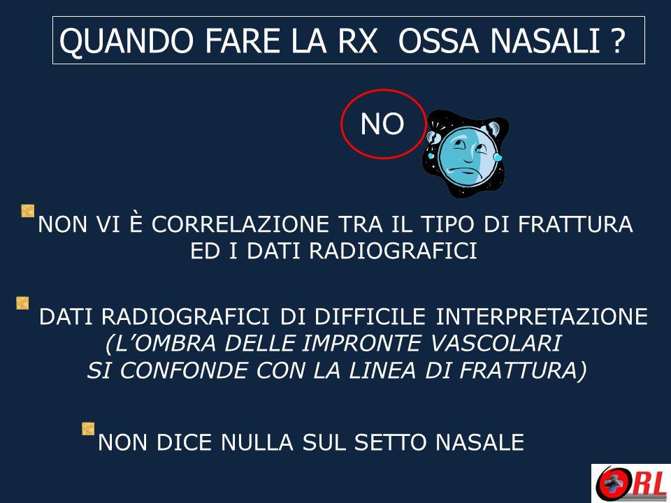 QUANDO FARE LA RX OSSA NASALI ? NO NON VI È CORRELAZIONE TRA IL TIPO DI FRATTURA ED I DATI RADIOGRAFICI DATI RADIOGRAFICI DI DIFFICILE INTERPRETAZIONE