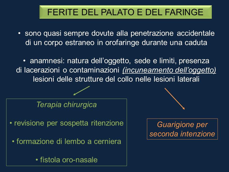 FERITE DEL PALATO E DEL FARINGE sono quasi sempre dovute alla penetrazione accidentale di un corpo estraneo in orofaringe durante una caduta anamnesi: