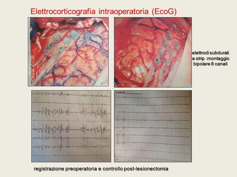 elettrodi subdurali a strip :montaggio bipolare 8 canali bipolare 8 canali Elettrocorticografia intraoperatoria (EcoG) registrazione preoperatoria e c