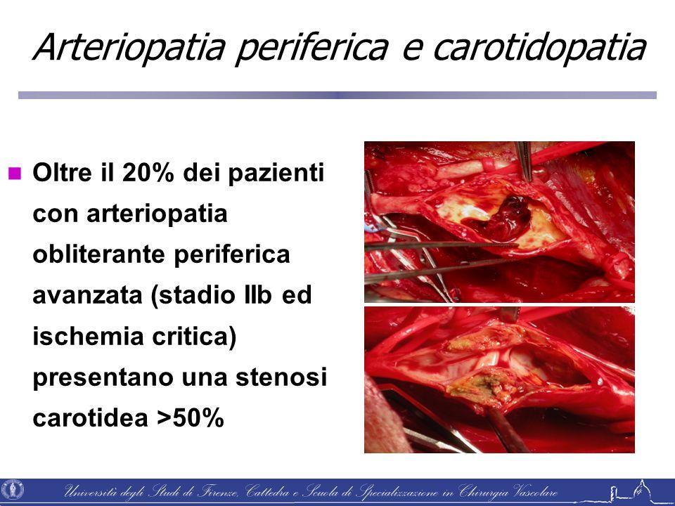 Università degli Studi di Firenze, Cattedra e Scuola di Specializzazione in Chirurgia Vascolare Oltre il 20% dei pazienti con arteriopatia obliterante