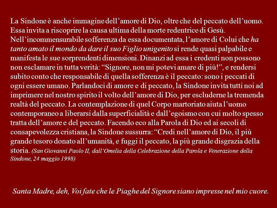 La Sindone è anche immagine dell'amore di Dio, oltre che del peccato dell'uomo. Essa invita a riscoprire la causa ultima della morte redentrice di Ges