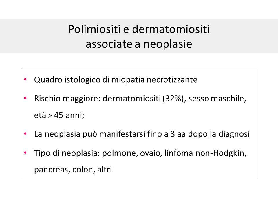 Polimiositi e dermatomiositi associate a neoplasie Quadro istologico di miopatia necrotizzante Rischio maggiore: dermatomiositi (32%), sesso maschile,