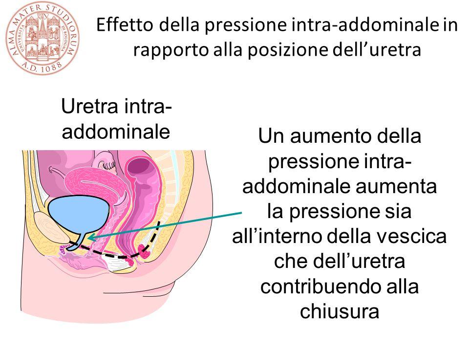 Effetto della pressione intra-addominale in rapporto alla posizione dell'uretra Un aumento della pressione intra- addominale aumenta la pressione sia