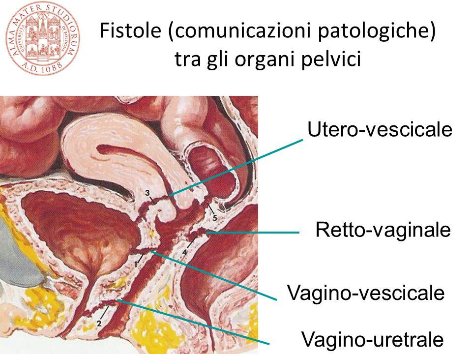 Fistole (comunicazioni patologiche) tra gli organi pelvici Vagino-uretrale Vagino-vescicale Retto-vaginale Utero-vescicale