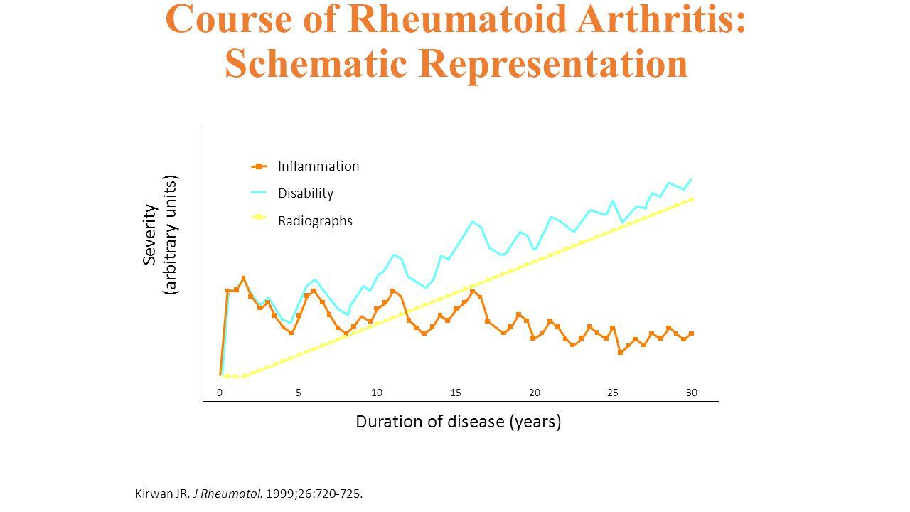 Course of Rheumatoid Arthritis: Schematic Representation Kirwan JR. J Rheumatol. 1999;26:720-725. Severity (arbitrary units) 0 Duration of disease (ye