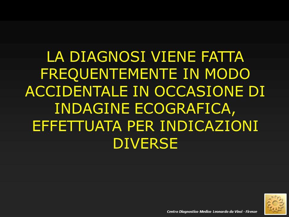 Dal punto di vista ecografico i noduli «solidi» renali si distinguono in: 1) angiomiolipoma 2) tutti gli altri Centro Diagnostico Medico Leonardo da Vinci - Firenze