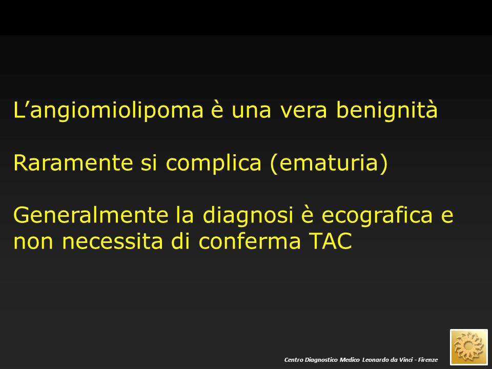 Tutti gli altri noduli ecograficamente «solidi» sono, fino a prova contraria, neoplasie maligne e necessitano di indagine TAC con mdc Centro Diagnostico Medico Leonardo da Vinci - Firenze