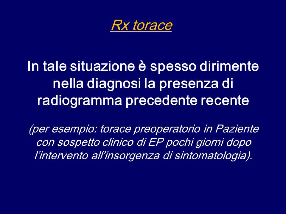 Una radiografia negativa non esclude l'EP quando l'esame è positivo per segni indicativi di EP esiste alta probabilità di malattia Il valore diagnostico è maggiore se è possibile il confronto con esami precedenti Costituisce un supporto per l'indicazione e soprattutto l'interpretazione dell'esame scintigrafico Rx torace: ruolo principale