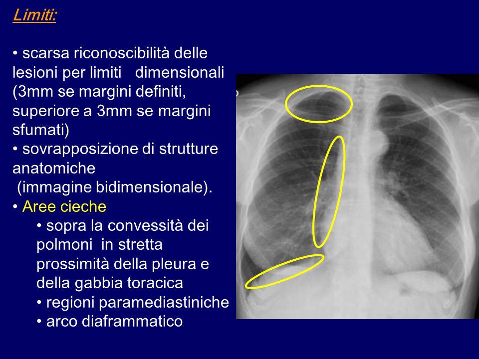 Limiti: scarsa riconoscibilità delle lesioni per limiti dimensionali (3mm se margini definiti, superiore a 3mm se margini sfumati) sovrapposizione di strutture anatomiche (immagine bidimensionale).