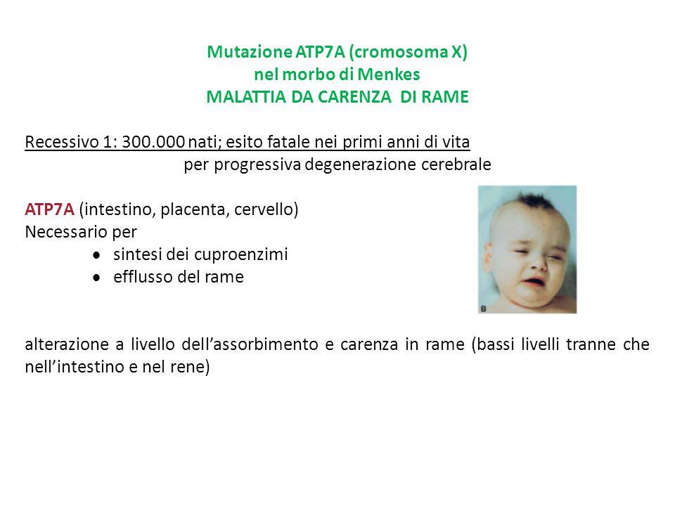 Mutazione ATP7A (cromosoma X) nel morbo di Menkes MALATTIA DA CARENZA DI RAME Recessivo 1: 300.000 nati; esito fatale nei primi anni di vita per progr