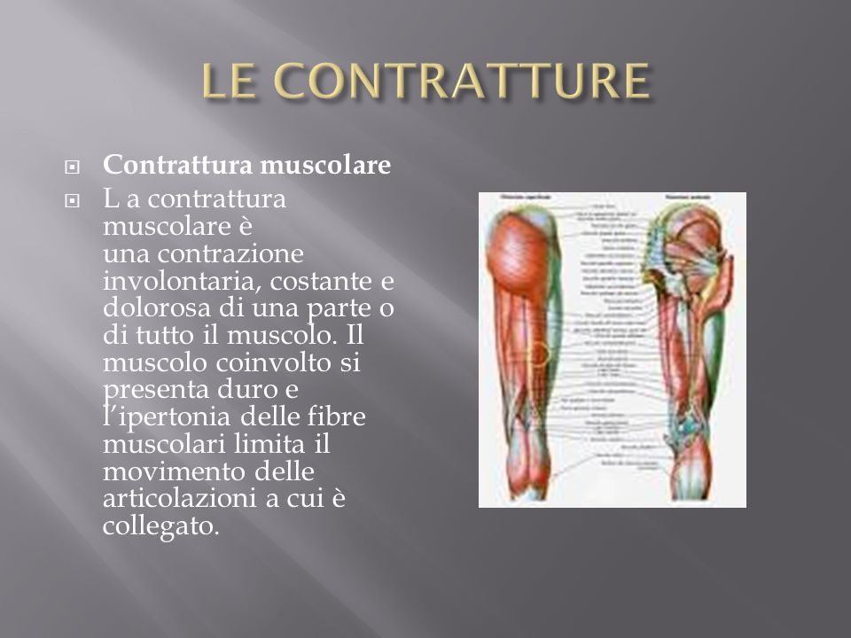  Contrattura muscolare  L a contrattura muscolare è una contrazione involontaria, costante e dolorosa di una parte o di tutto il muscolo. Il muscolo