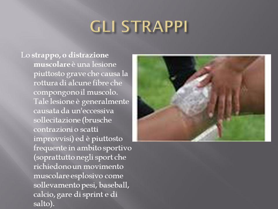 Lo strappo, o distrazione muscolare è una lesione piuttosto grave che causa la rottura di alcune fibre che compongono il muscolo. Tale lesione è gener